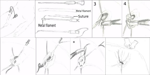 ped inguinal hernia 18
