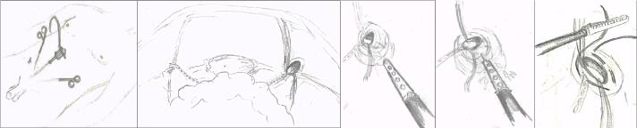 ped inguinal hernia 5