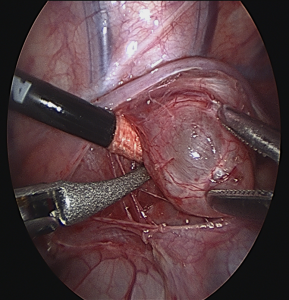 Minimally Invasive Approach to Pediatric Mediastinal Masses Fig 3