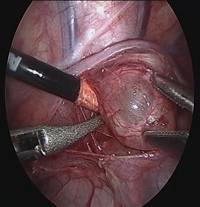 Minimally Invasive Approach to Pediatric Mediastinal Masses Fig 3