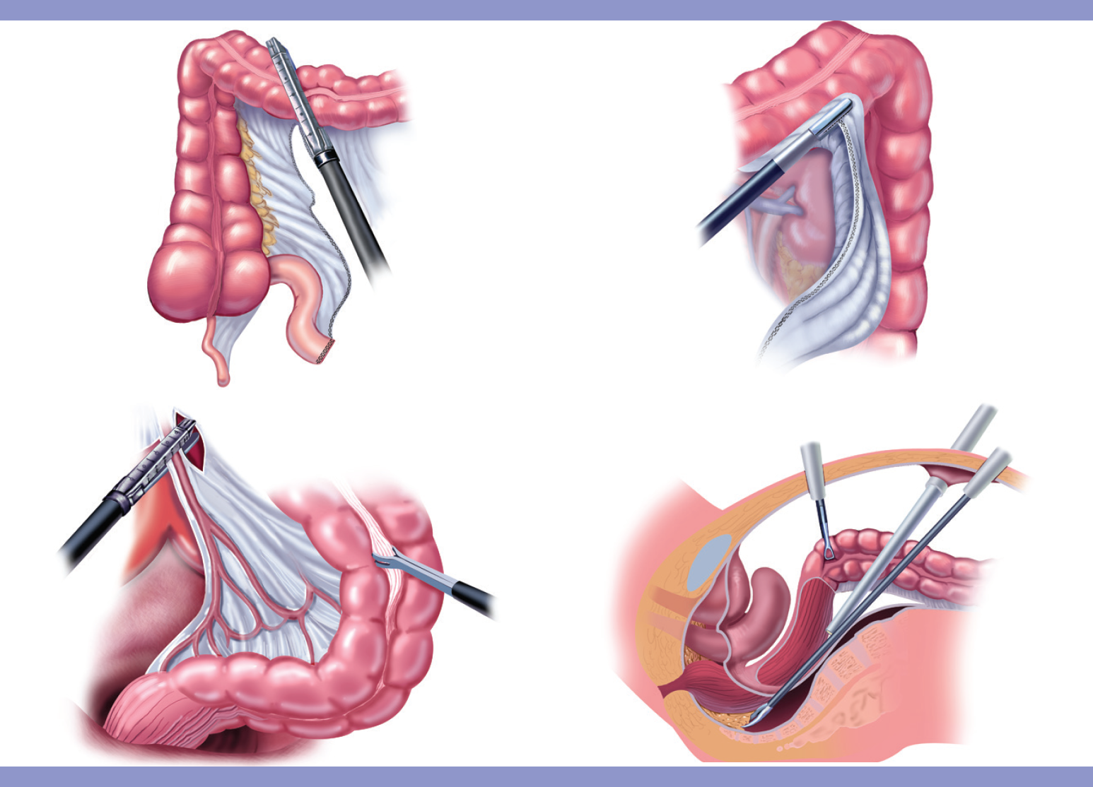 Laparoscopic Colon Resection Patient Information From Sages
