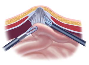 diagnosticlaparoscopy_page_2