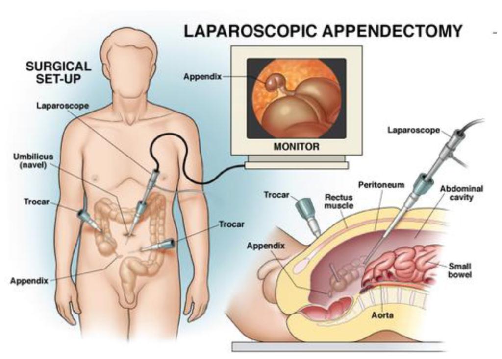 SAGES PI Appendix Removal