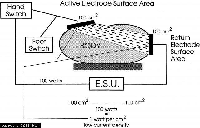 Energy Sources Used in Laparoscopy