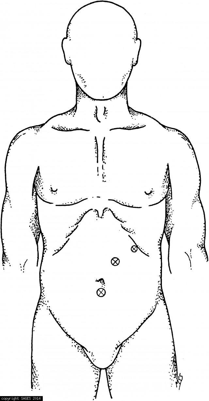 Trocar sites for endoluminal gastric surgery