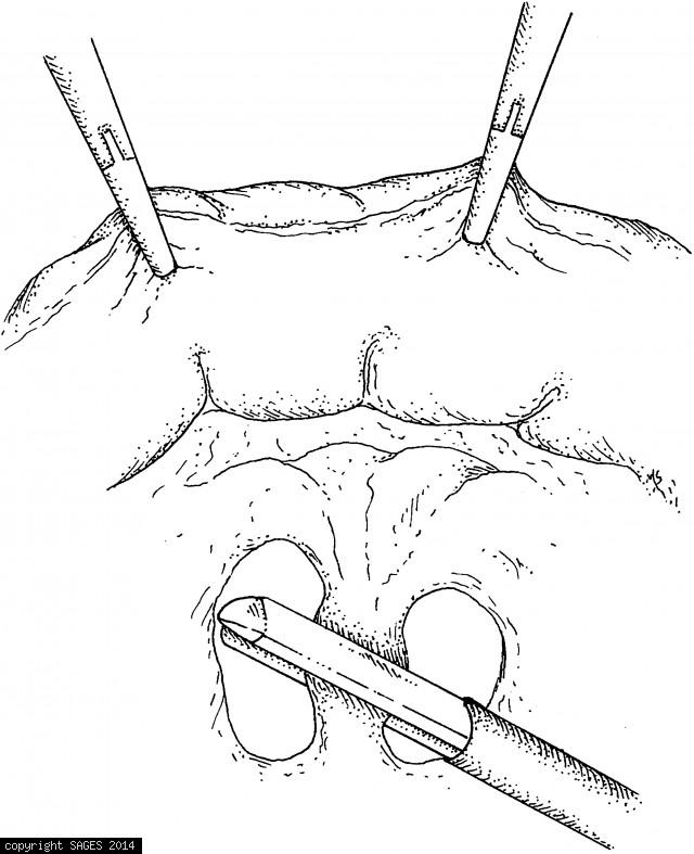 The colon is retracted toward anterior abdominal