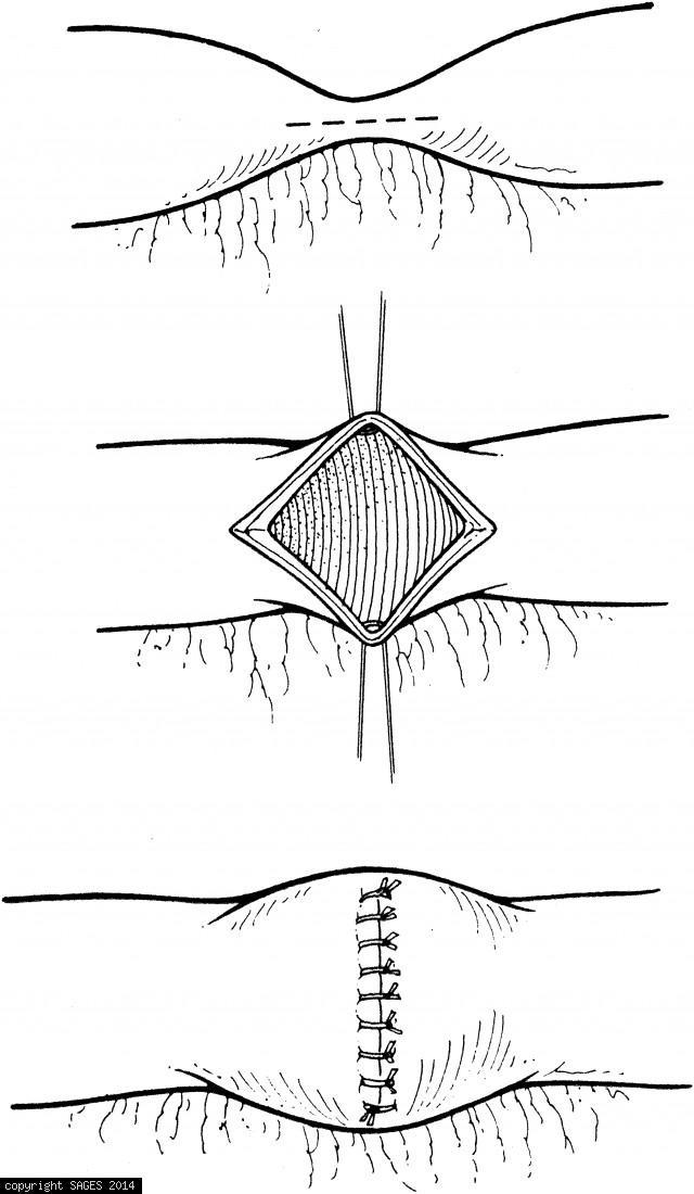 Opening the bowel longitudinally