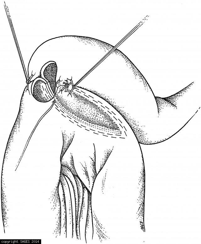 Inspecting the staple line for hemostasis