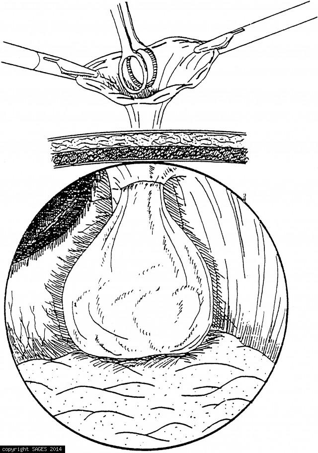 Laparoscopic Splenectomy
