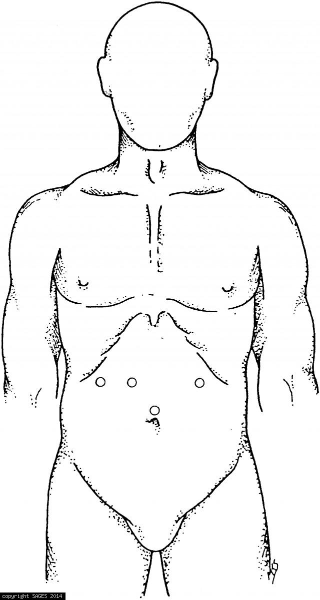 Trocar placement for upper abdominal dissection