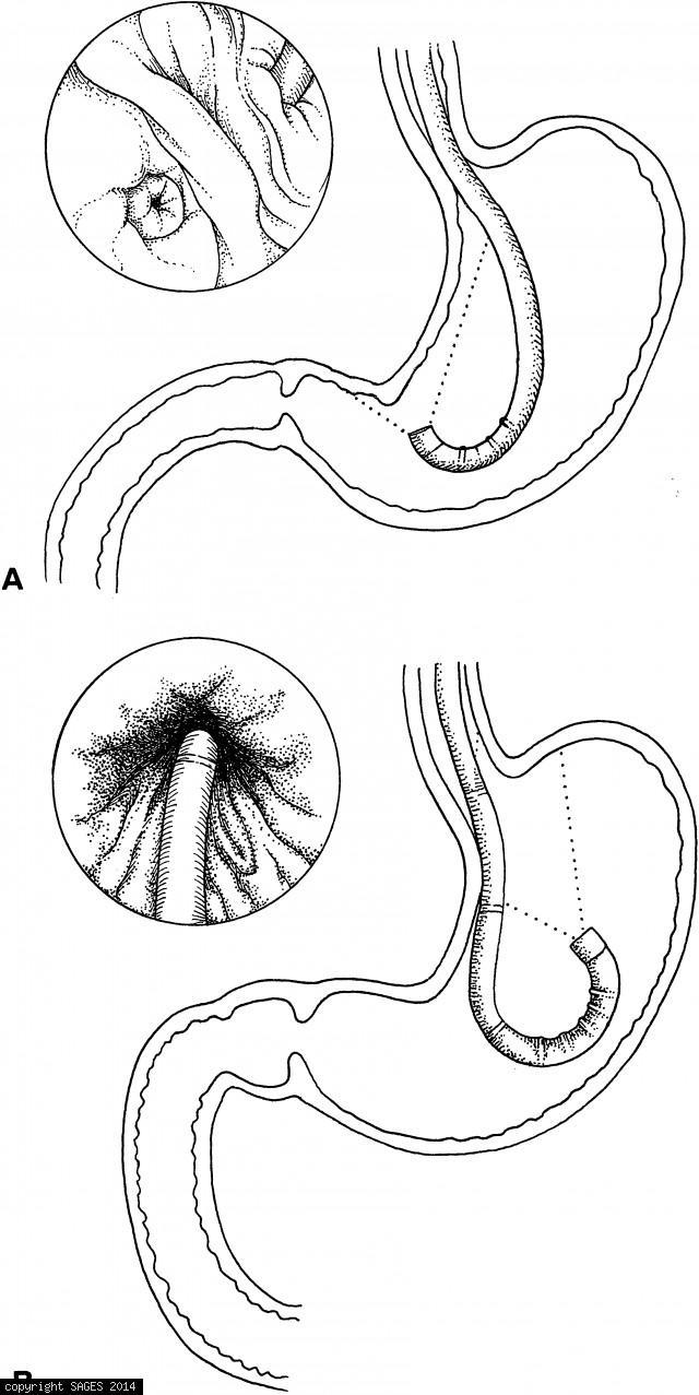 Retroflex the endoscope
