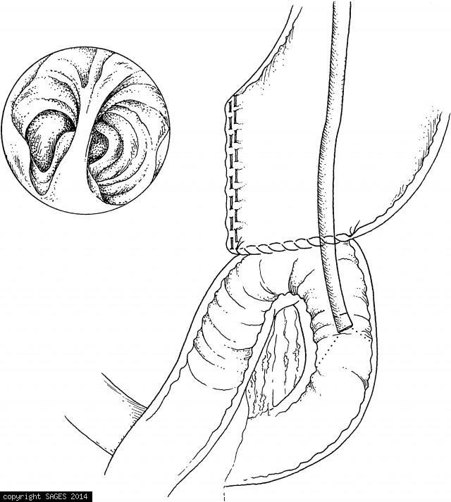 A pediatric colonoscope