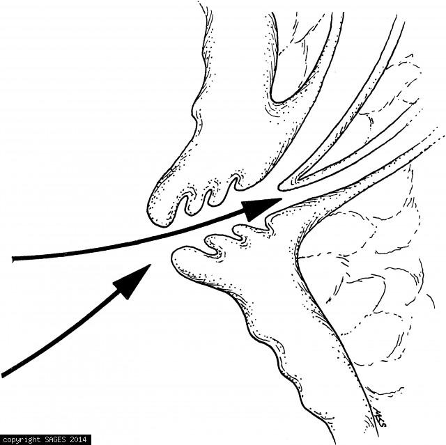 Proper cannulation angle
