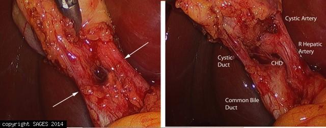 Right hepatic artery anterior to common hepatic duct