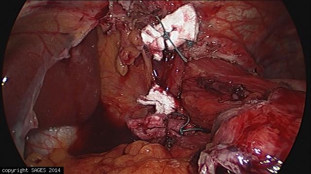 Paraesophageal Hernia – repaired