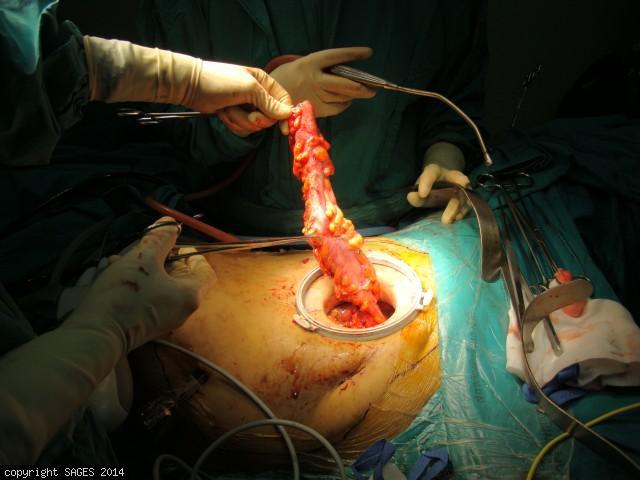 Laparoscopic Surgery for Bulky GI Cancer