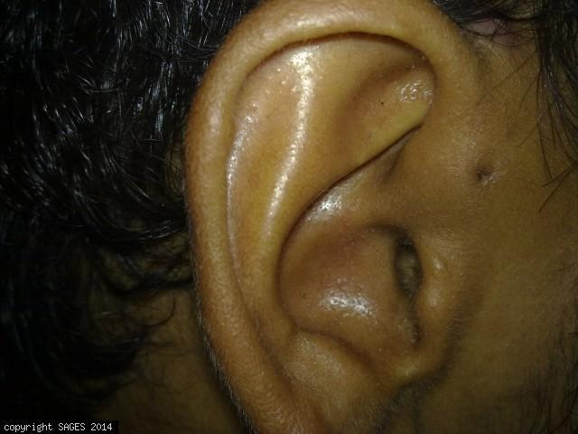 Pre-auricular Sinus