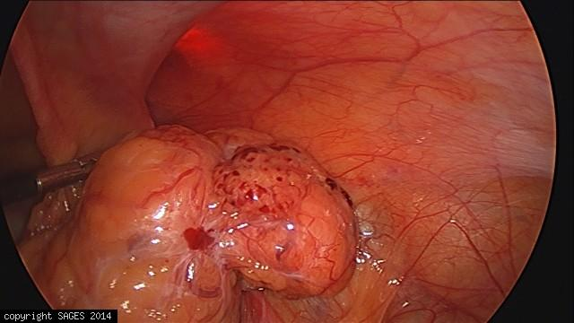 Reduced right inguinal hernia
