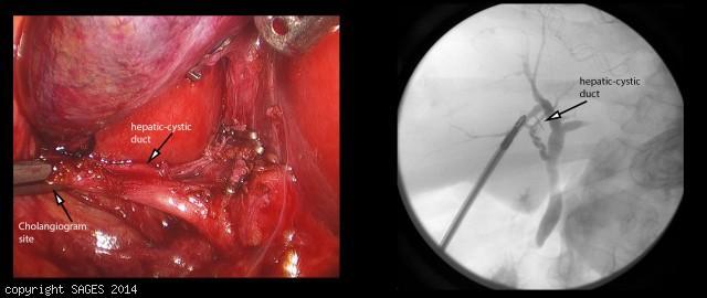 hepatocystic duct